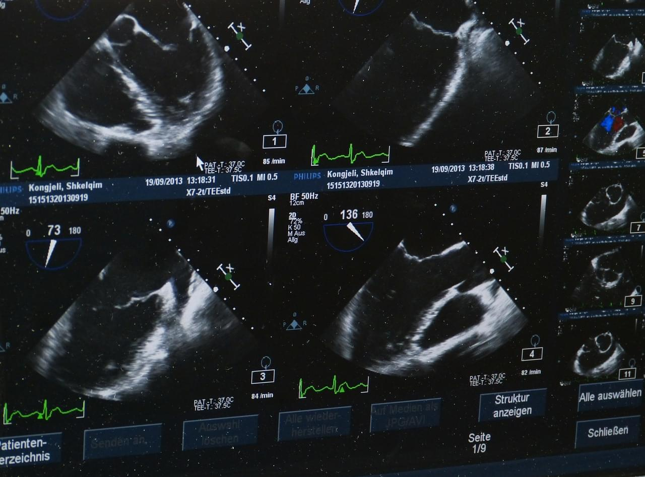What you need to know about color doppler!