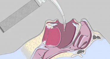What is a laryngoscopy